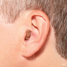 Hearing Aid – Completely In The Canal (CIC)