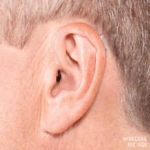 Hearing Aid – Receiver In The Canal (RIC) Open Fit